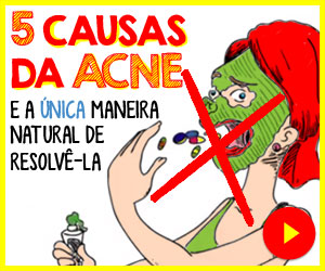 Adeus Acne - Mike Walden